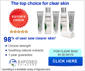 Exposed Acne Treatment